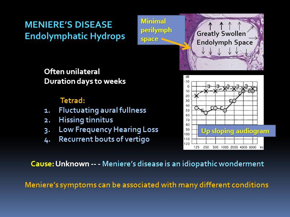 Endolymphatic Hydrops
