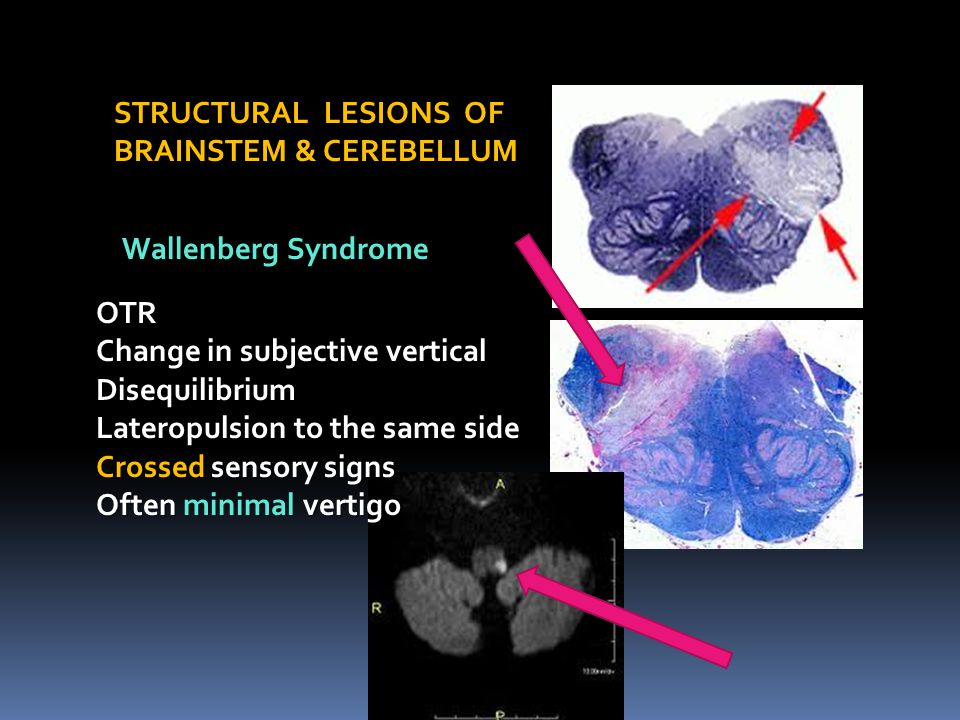 STRUCTURAL LESIONS OF BRAINSTEM & CEREBELLUM. Wallenberg Syndrome. OTR. Change in subjective vertical.