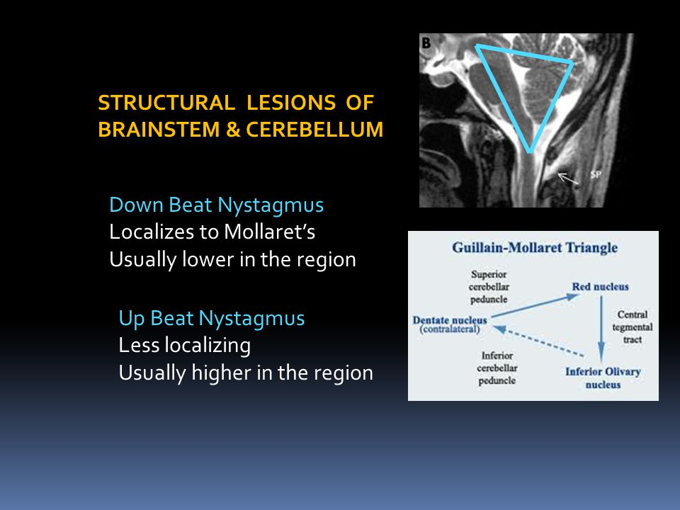 STRUCTURAL LESIONS OF BRAINSTEM & CEREBELLUM. Down Beat Nystagmus. Localizes to Mollaret's. Usually lower in the region.
