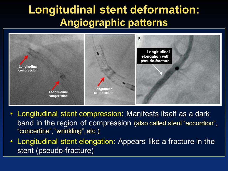 Retrospective analysis of longitudinal stent deformation in the real world : Study