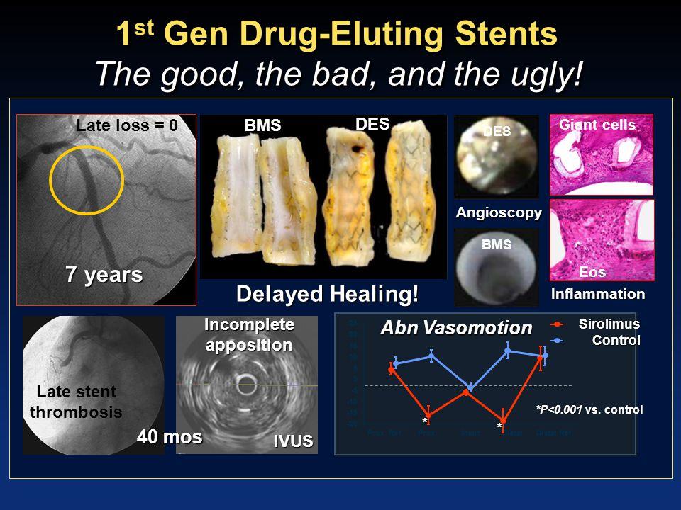 Second Generation DES ZES EES Drug Polymer Stent Zotarolimus