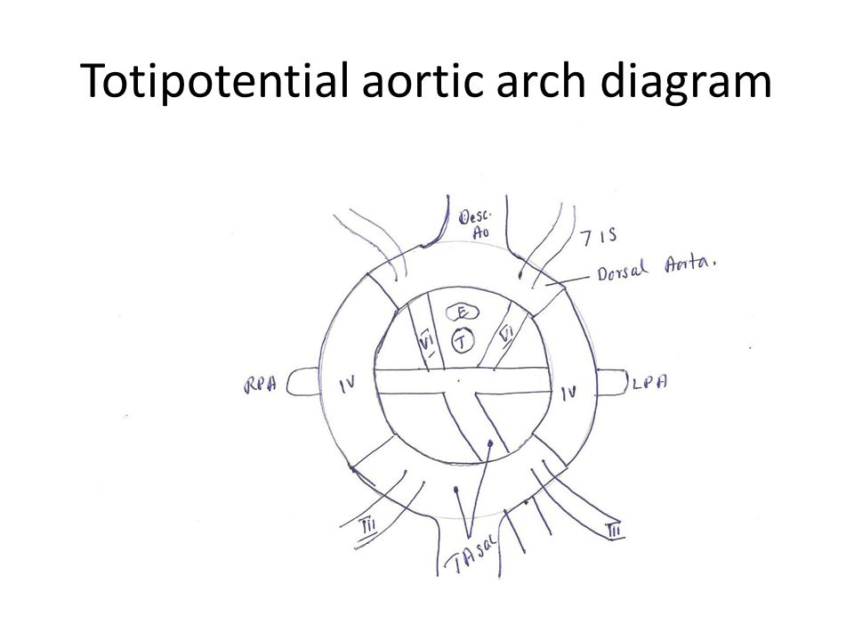 Totipotential aortic arch diagram