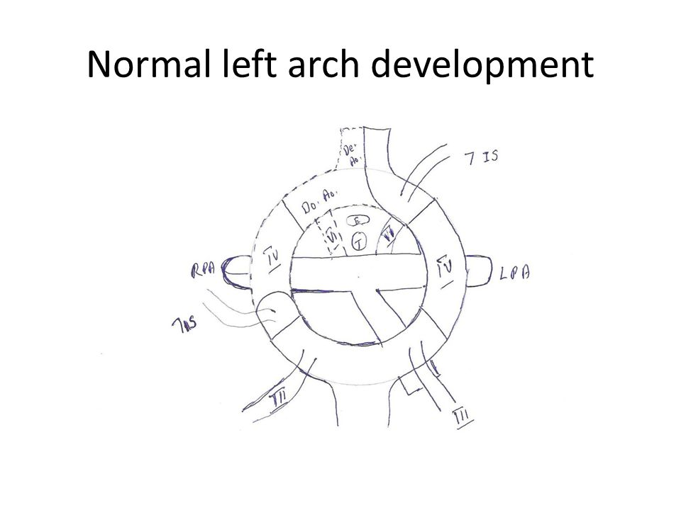 Normal left arch development