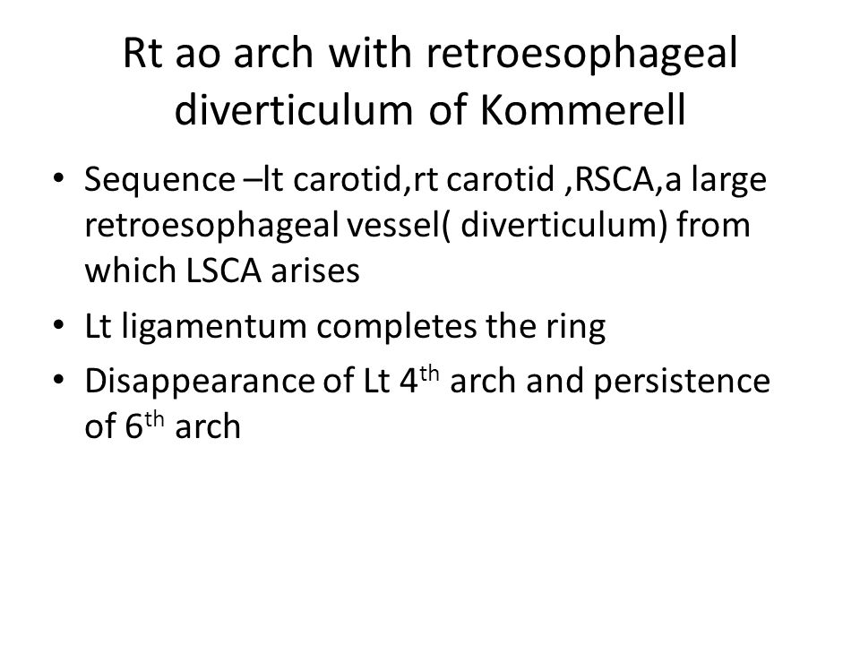 Rt ao arch with retroesophageal diverticulum of Kommerell