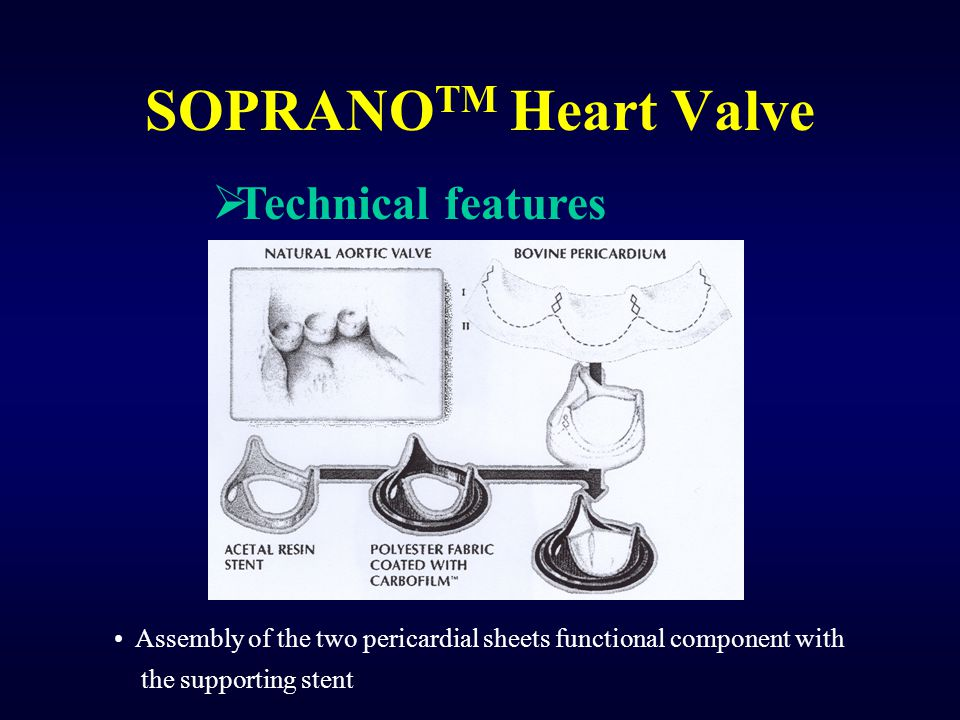 SOPRANOTM Heart Valve Technical features
