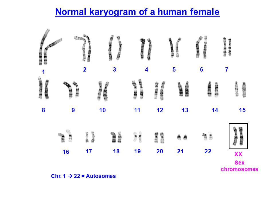Normal karyogram of a human female