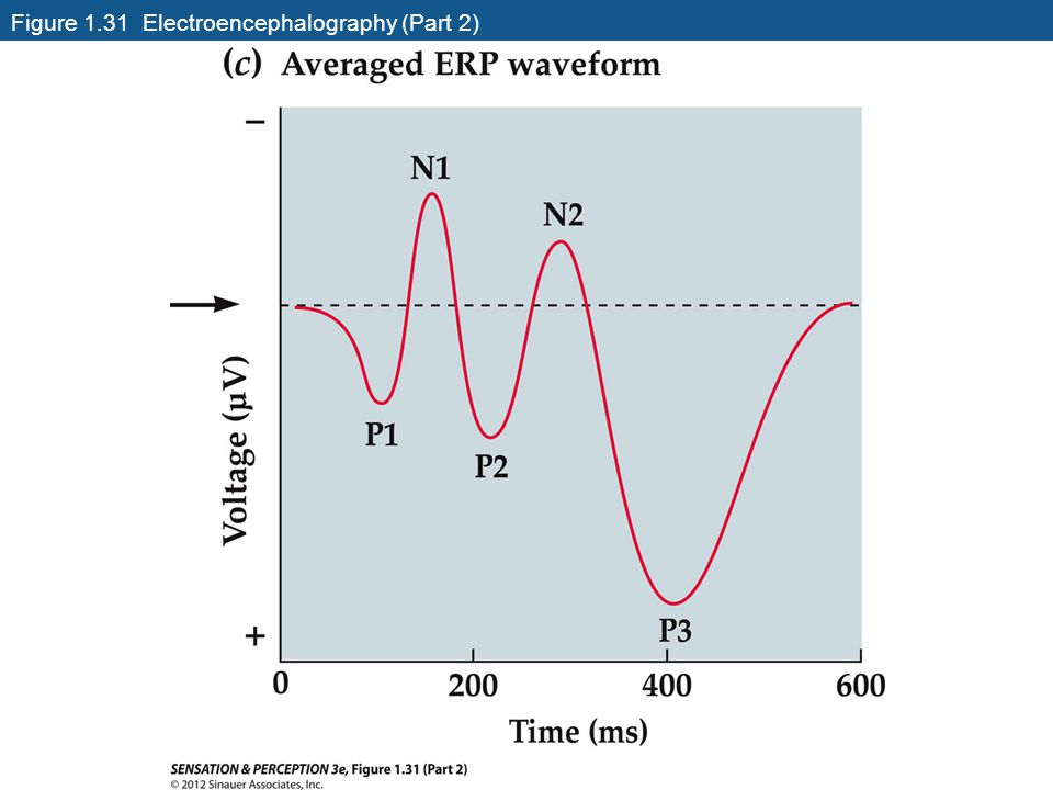 Figure 1.31 Electroencephalography (Part 2)