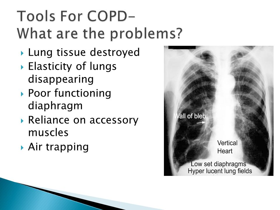 Tools For COPD- What are the problems