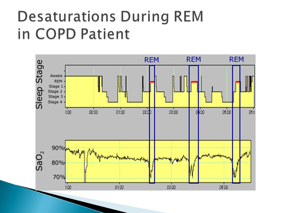Desaturations During REM in COPD Patient