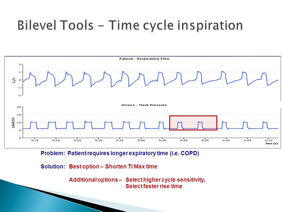 Bilevel Tools - Time cycle inspiration