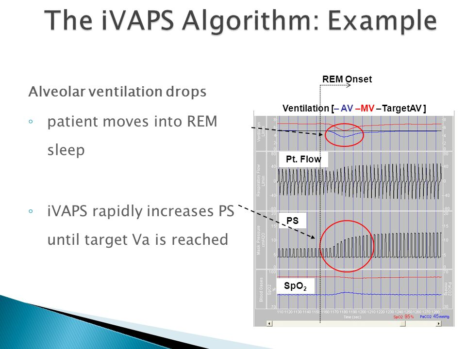 The iVAPS Algorithm: Example