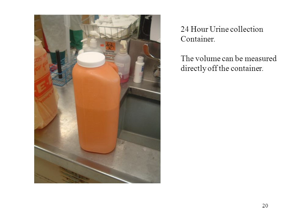 24 Hour Urine collection Container. The volume can be measured directly off the container.