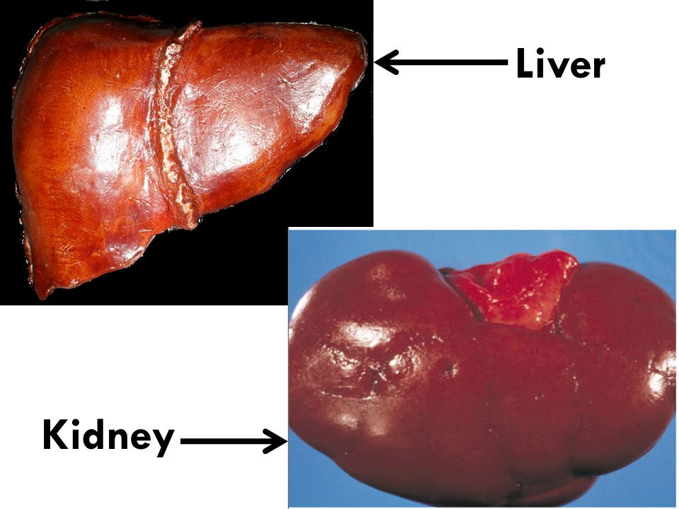 Liver Kidney