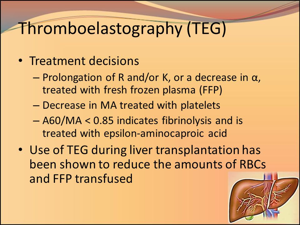 Thromboelastography (TEG)