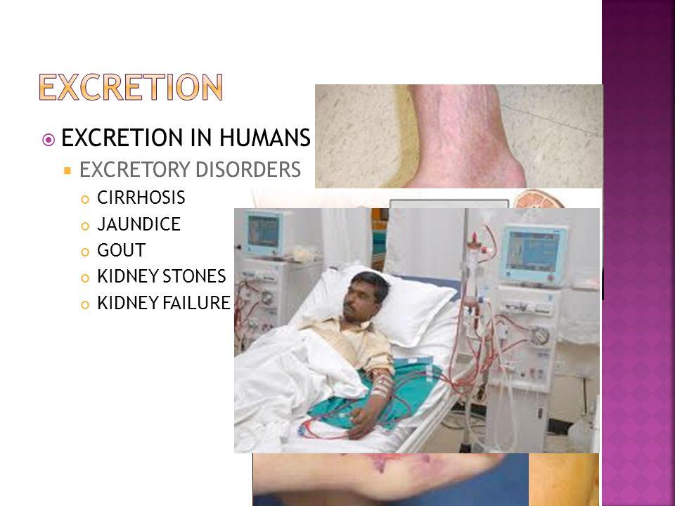 EXCRETION EXCRETION IN HUMANS EXCRETORY DISORDERS CIRRHOSIS JAUNDICE