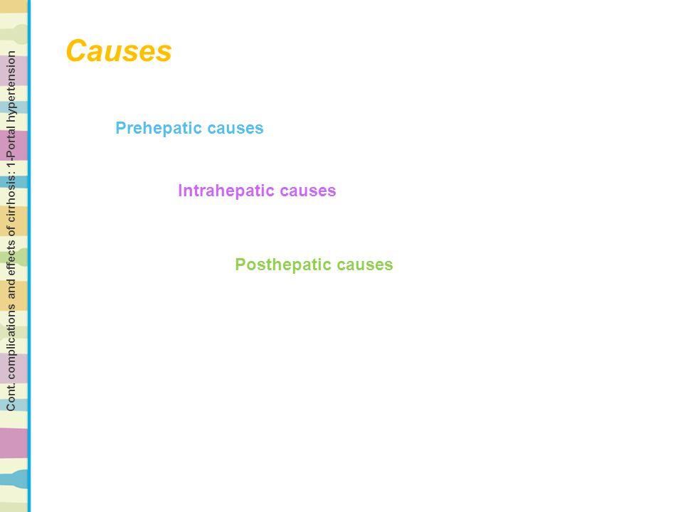 Causes Prehepatic causes Intrahepatic causes Posthepatic causes