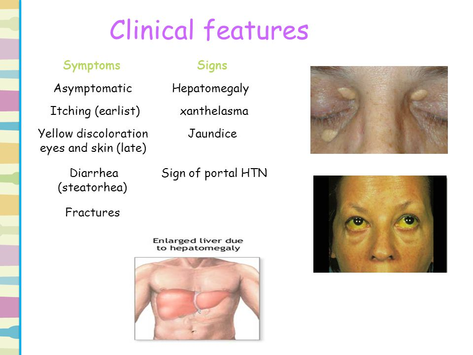 Clinical features Signs Symptoms Hepatomegaly Asymptomatic xanthelasma