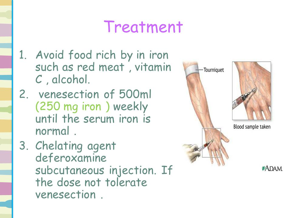 Treatment Avoid food rich by in iron such as red meat , vitamin C , alcohol.