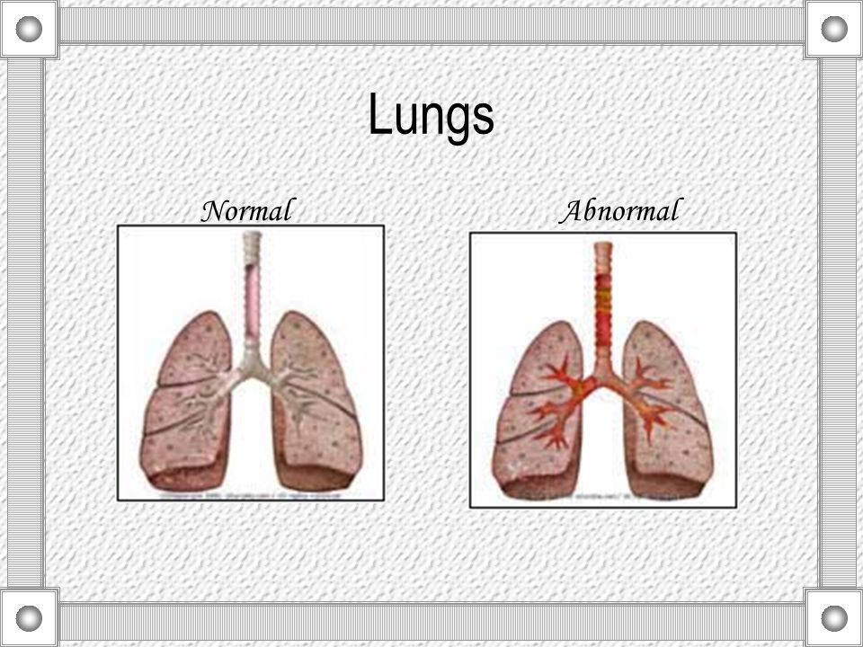 Lungs Normal Abnormal