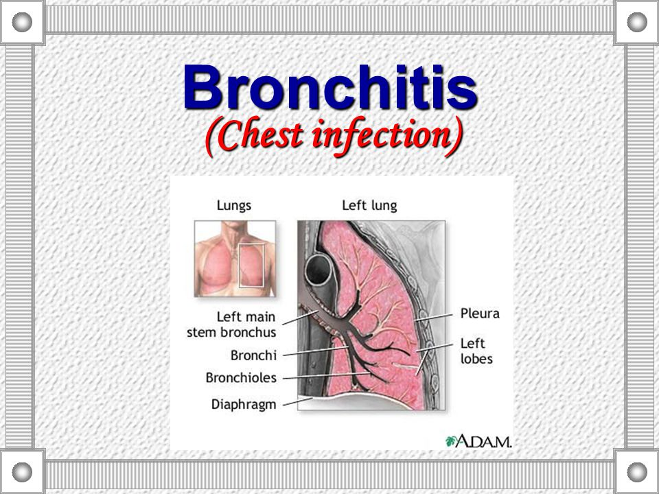 Bronchitis (Chest infection)