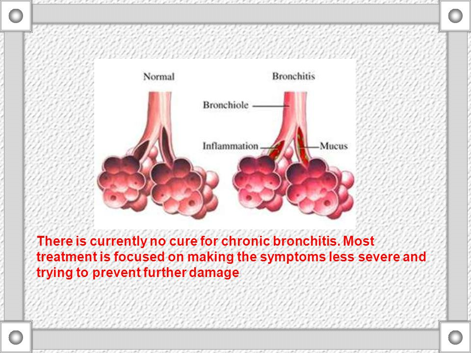 There is currently no cure for chronic bronchitis