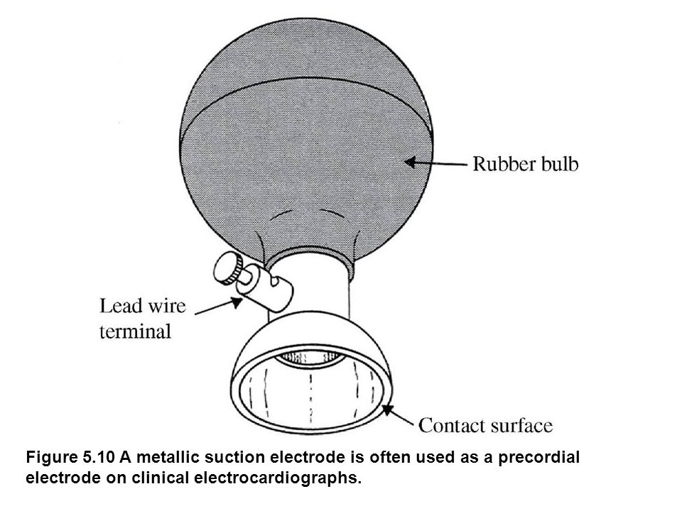 fig_05_10 Figure 5.10 A metallic suction electrode is often used as a precordial electrode on clinical electrocardiographs.