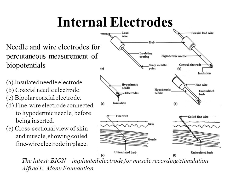 Internal Electrodes Needle and wire electrodes for percutaneous measurement of biopotentials.