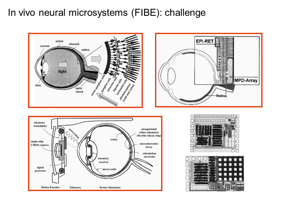 In vivo neural microsystems (FIBE): challenge