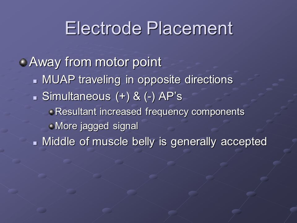 Electrode Placement Away from motor point