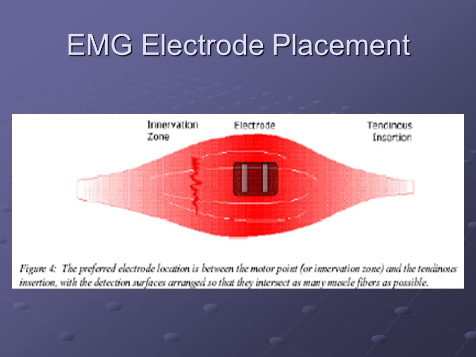 EMG Electrode Placement