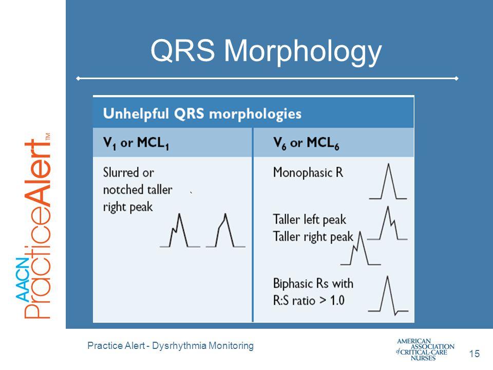 QRS Morphology Practice Alert - Dysrhythmia Monitoring