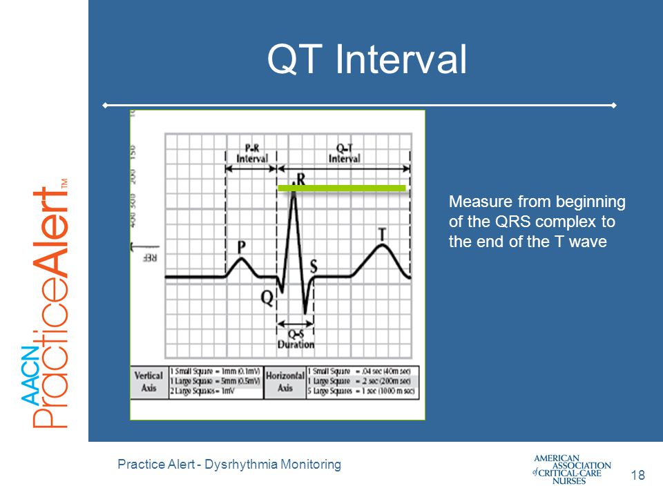 QT Interval Measure from beginning of the QRS complex to the end of the T wave. Practice Alert - Dysrhythmia Monitoring.
