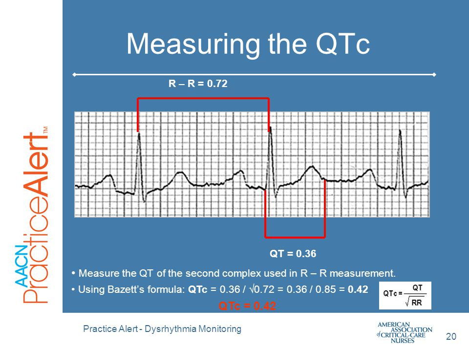 Measuring the QTc QT = 0.36. R – R = 0.72. Measure the QT of the second complex used in R – R measurement.