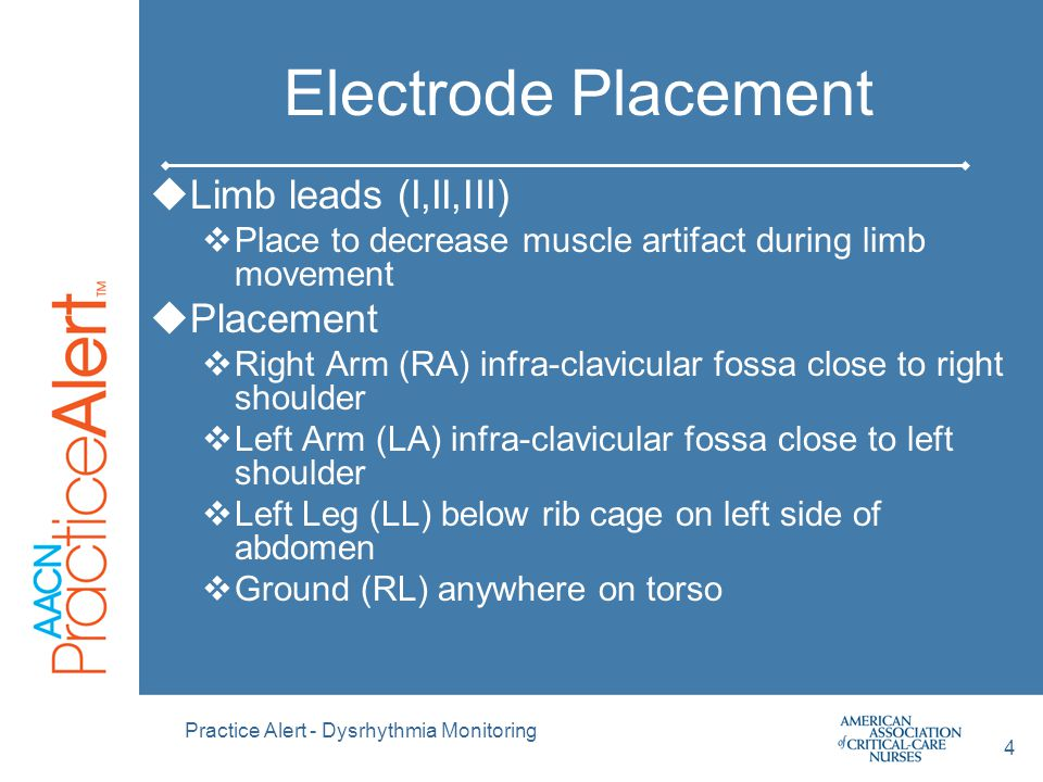 Electrode Placement Limb leads (I,II,III) Placement