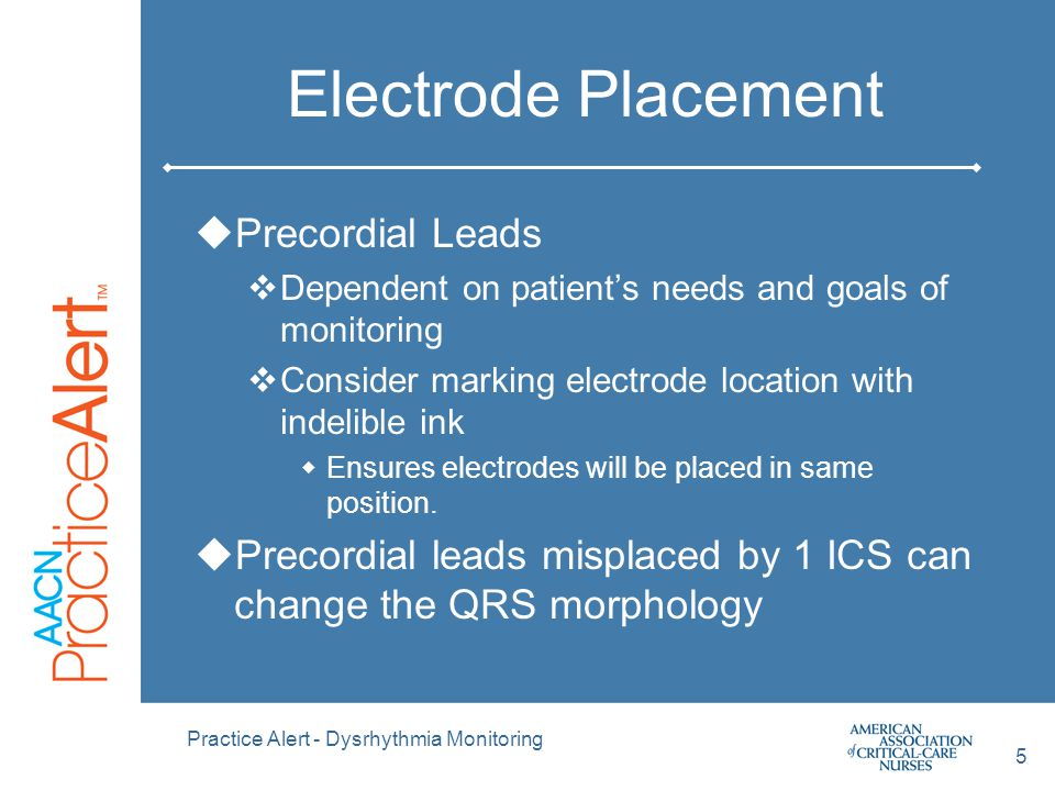 Electrode Placement Precordial Leads