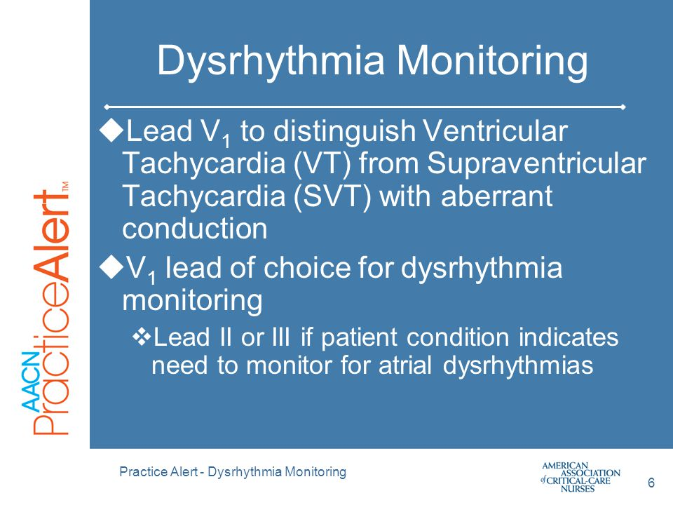 Dysrhythmia Monitoring