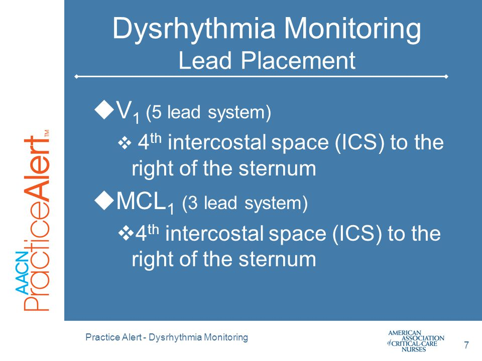 Dysrhythmia Monitoring Lead Placement