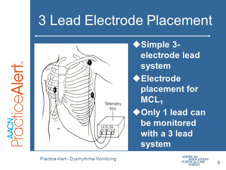 3 Lead Electrode Placement