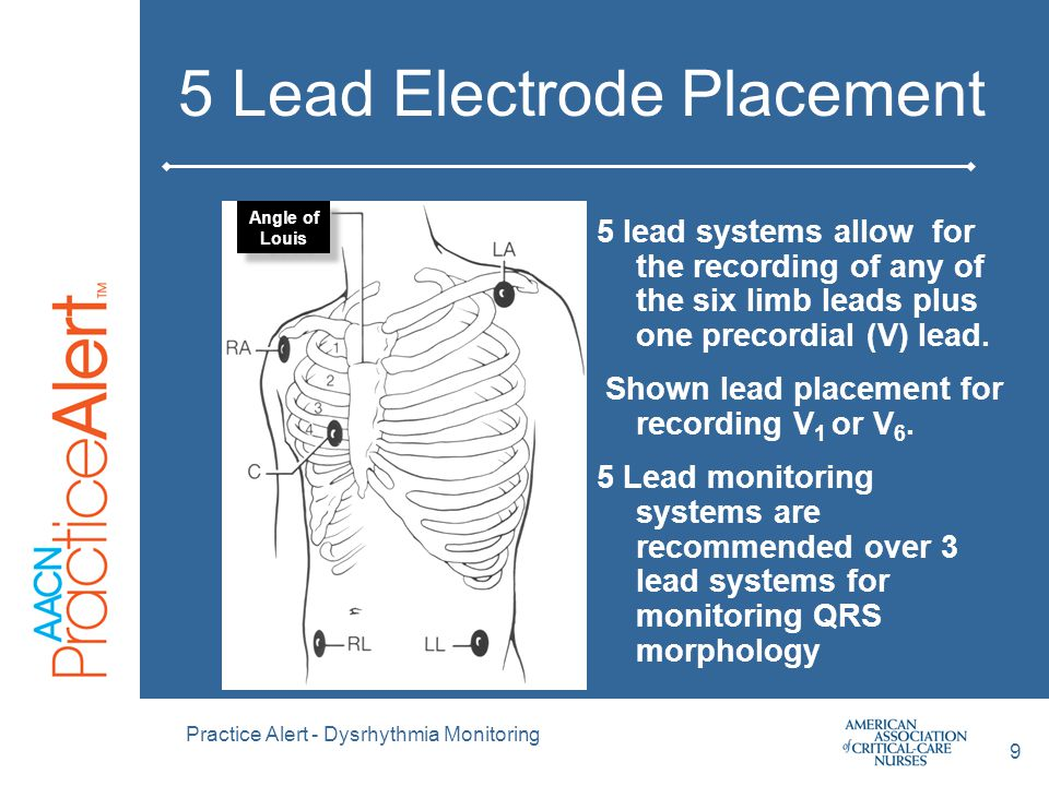 5 Lead Electrode Placement