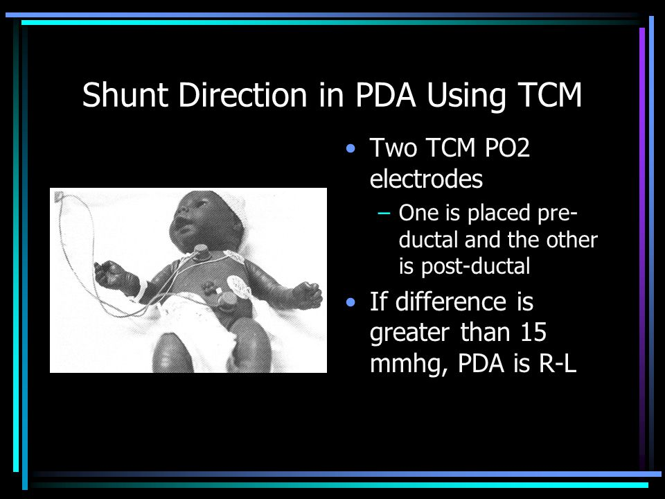 Shunt Direction in PDA Using TCM