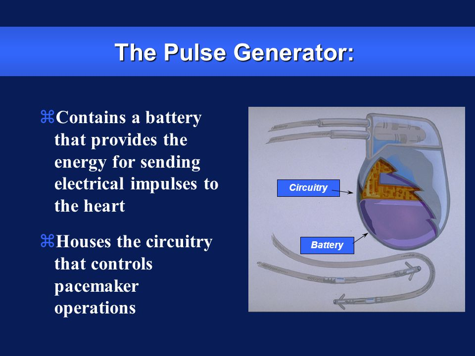 The Pulse Generator: Contains a battery that provides the energy for sending electrical impulses to the heart.