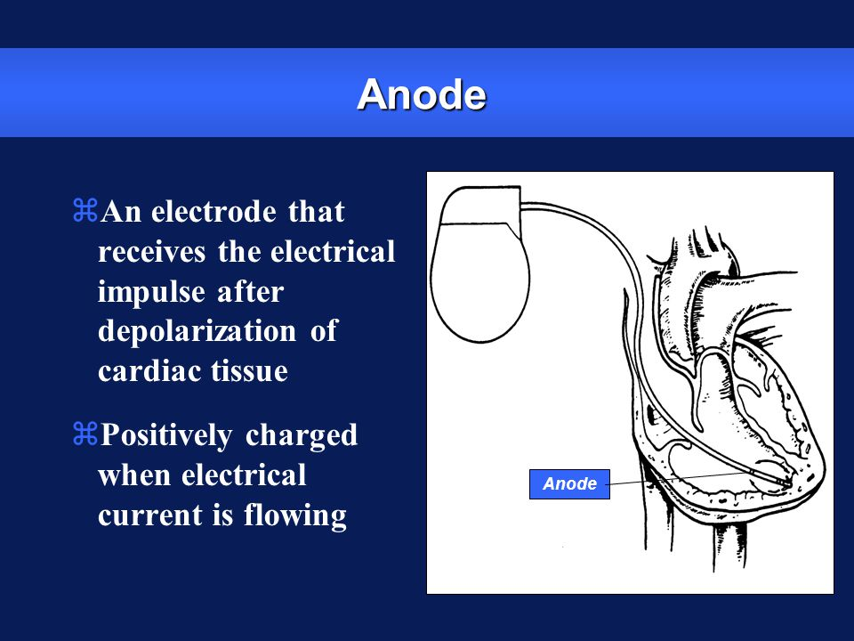 Anode An electrode that receives the electrical impulse after depolarization of cardiac tissue.
