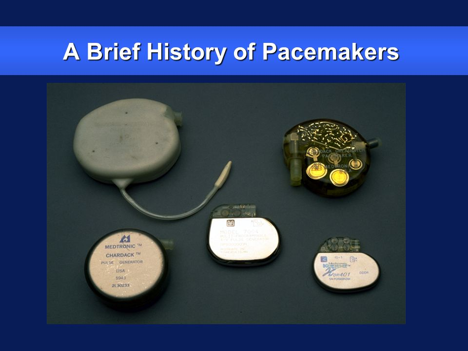 A Brief History of Pacemakers