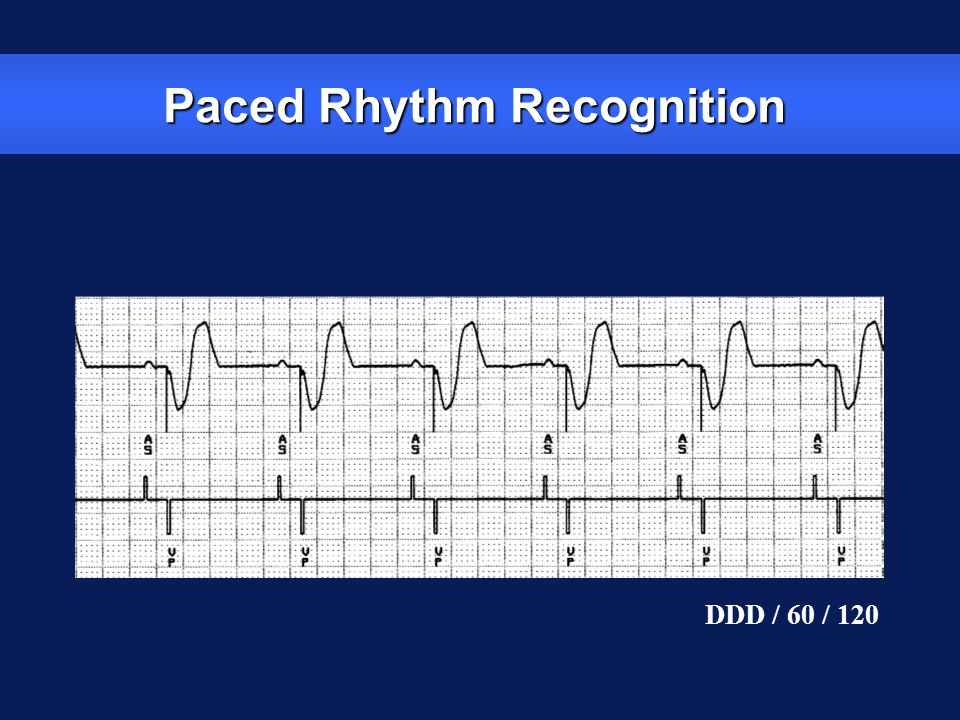 Paced Rhythm Recognition