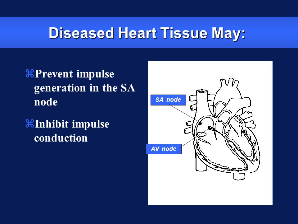 Diseased Heart Tissue May: