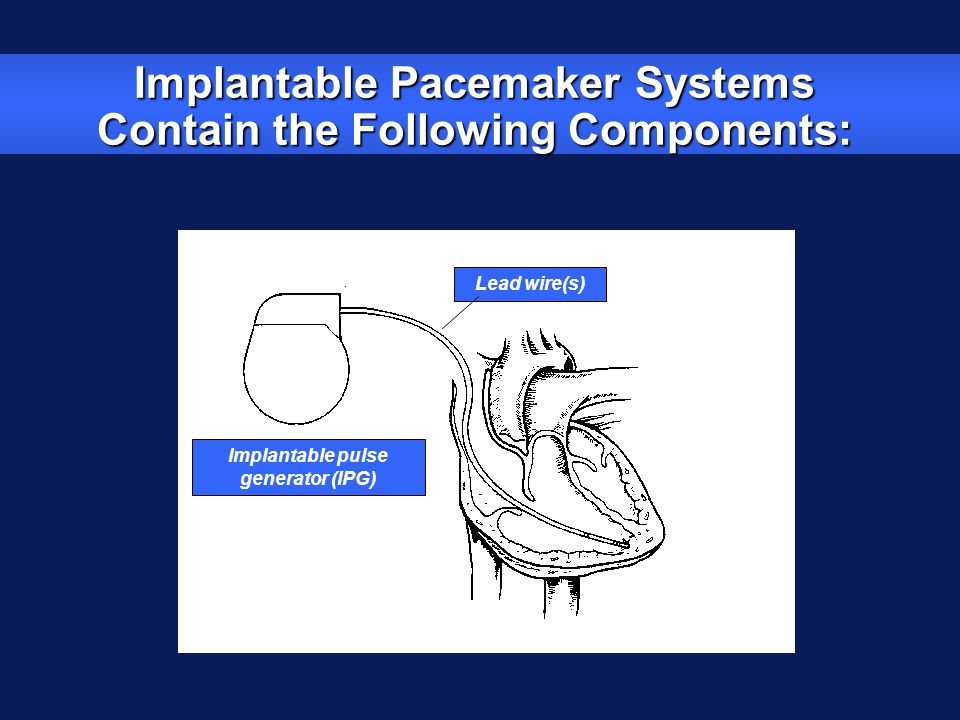 Implantable Pacemaker Systems Contain the Following Components: