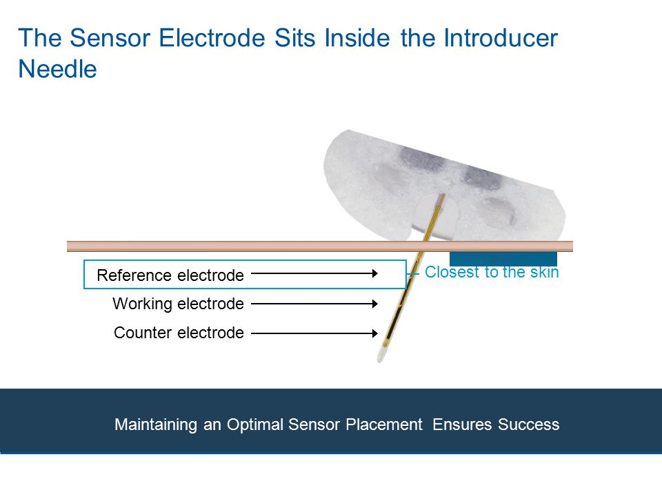 The Sensor Electrode Sits Inside the Introducer Needle