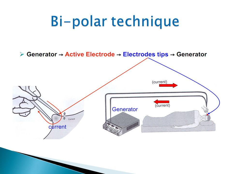 Bi-polar technique 10