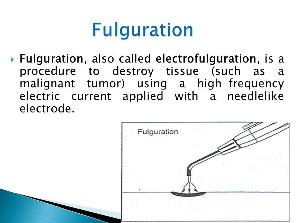 Fulguration