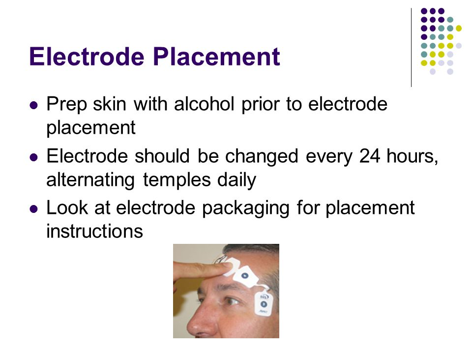 Electrode Placement Prep skin with alcohol prior to electrode placement. Electrode should be changed every 24 hours, alternating temples daily.